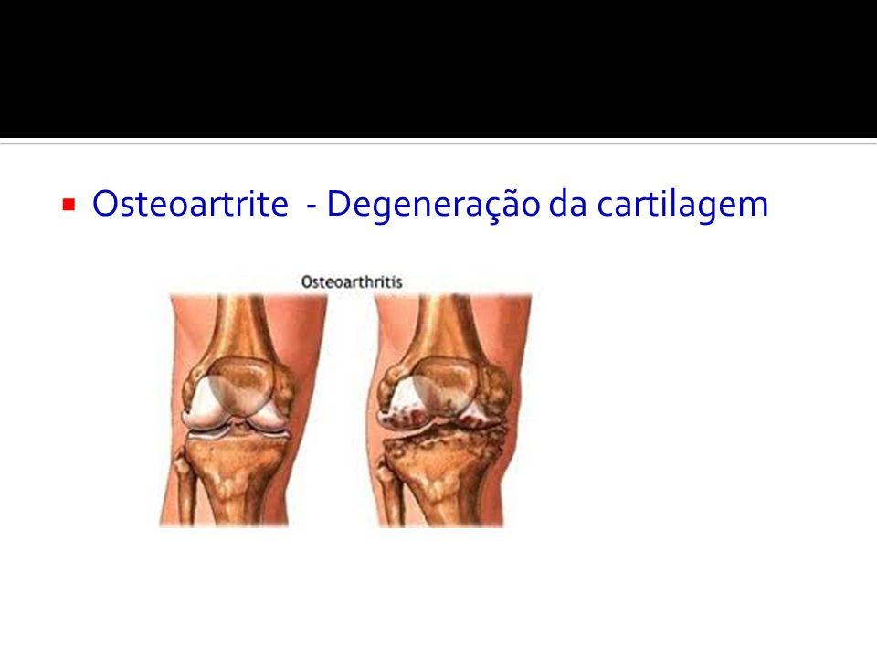 Osteoartrite - Degeneração da cartilagem