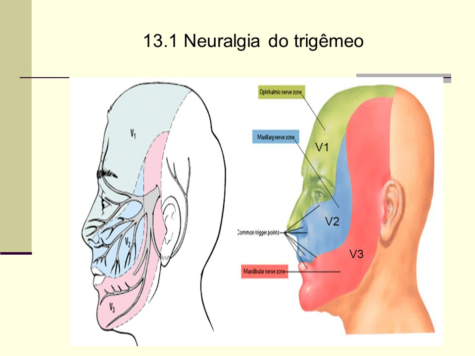 13.1 Neuralgia do trigêmeo V1 V2 V3