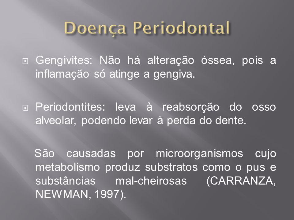 Doença Periodontal Gengivites: Não há alteração óssea, pois a inflamação só atinge a gengiva.