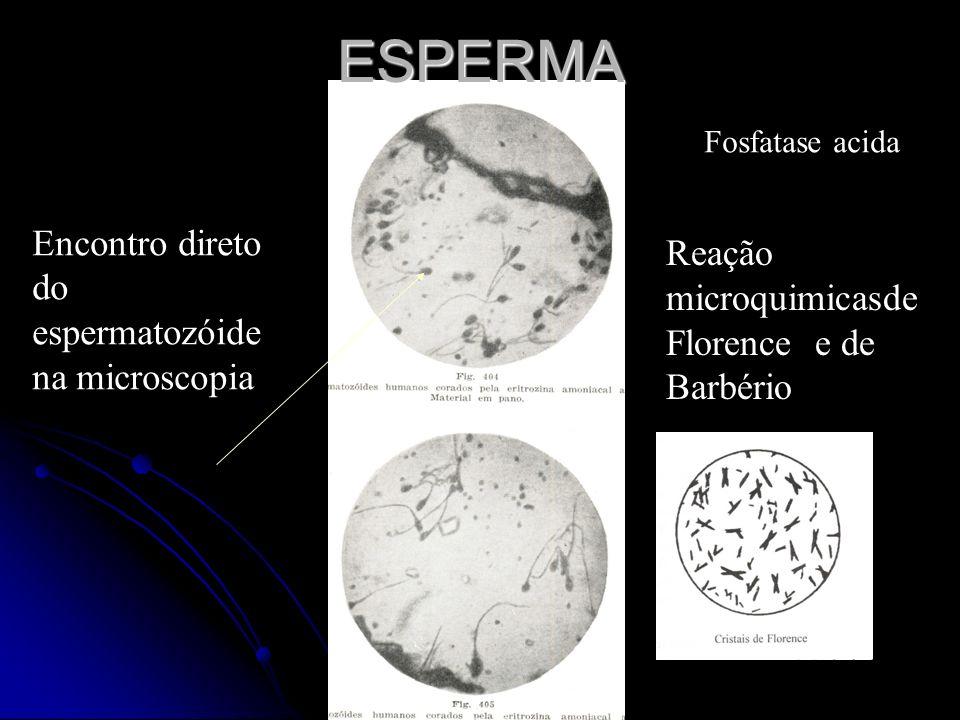 ESPERMA Encontro direto do espermatozóide na microscopia