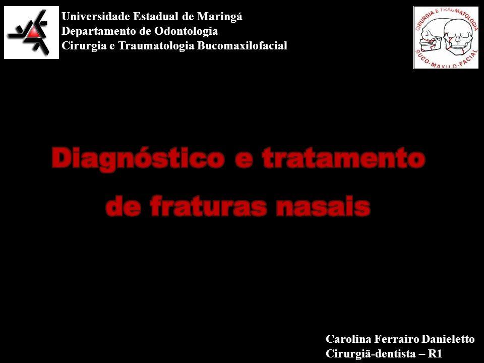 Diagnóstico e tratamento de fraturas nasais