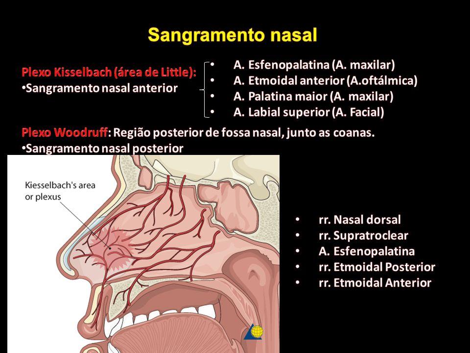 Sangramento nasal A. Esfenopalatina (A. maxilar)