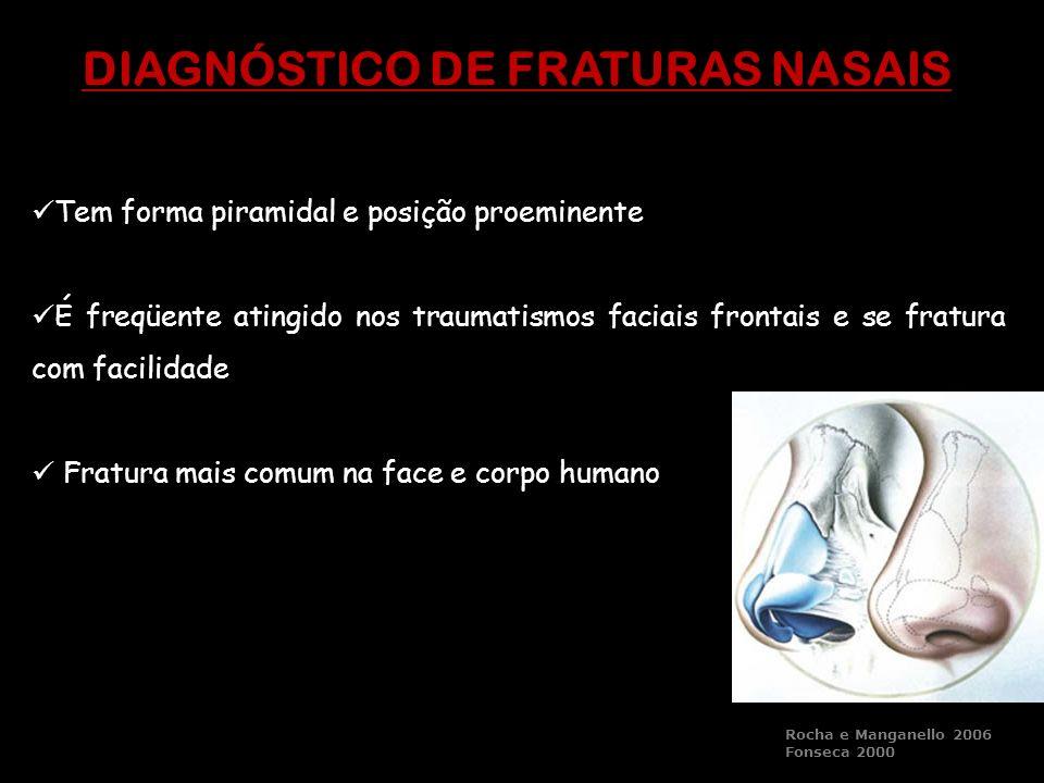 DIAGNÓSTICO DE FRATURAS NASAIS