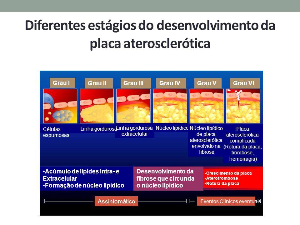 Diferentes estágios do desenvolvimento da placa aterosclerótica