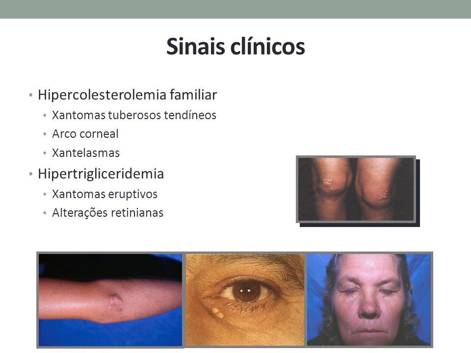 Sinais clínicos Hipercolesterolemia familiar Hipertrigliceridemia