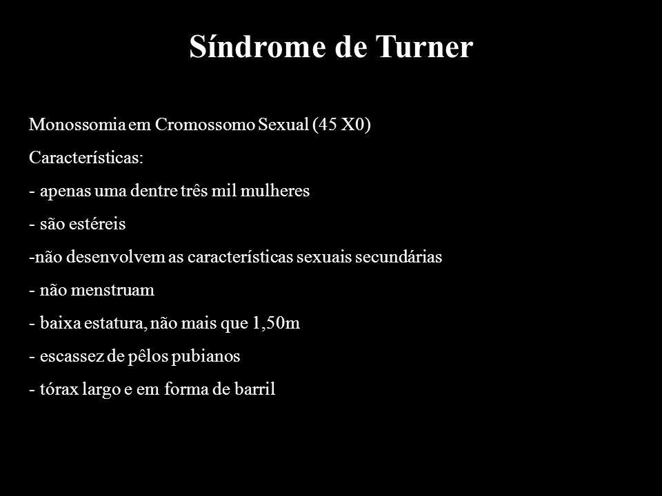 Síndrome de Turner Monossomia em Cromossomo Sexual (45 X0)