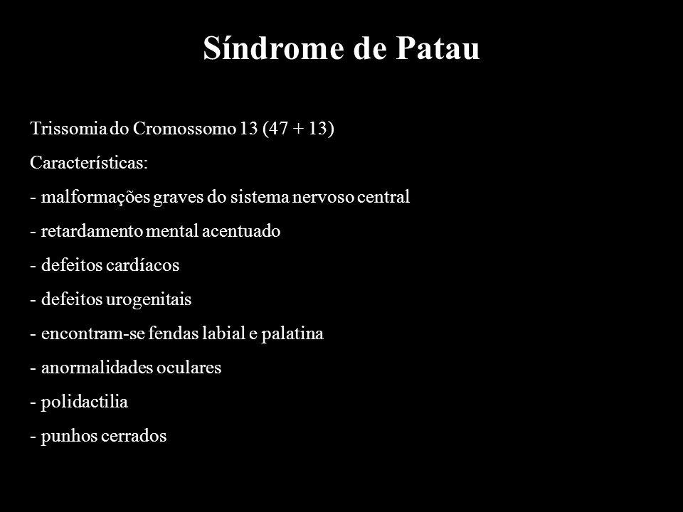 Síndrome de Patau Trissomia do Cromossomo 13 (47 + 13)