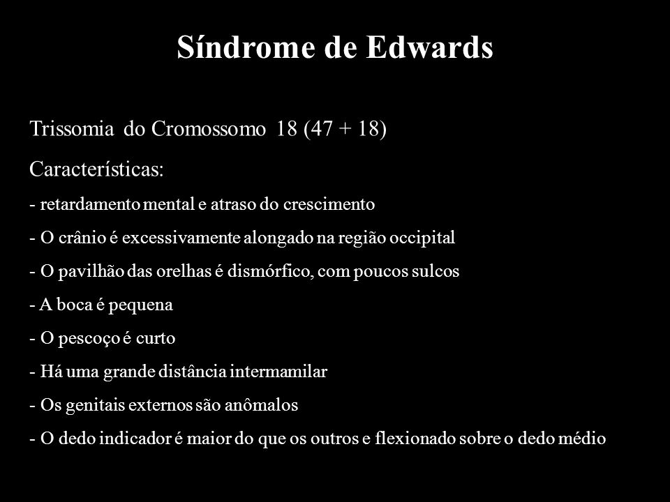 Síndrome de Edwards Trissomia do Cromossomo 18 (47 + 18)