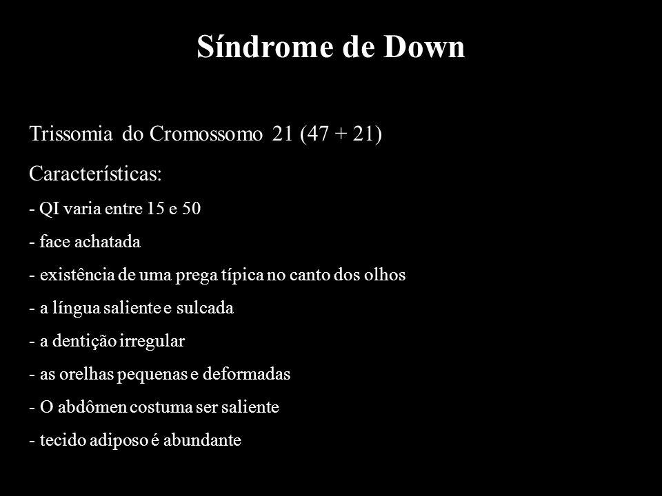 Síndrome de Down Trissomia do Cromossomo 21 (47 + 21) Características: