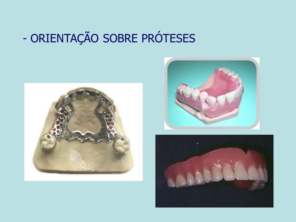 - ORIENTAÇÃO SOBRE PRÓTESES