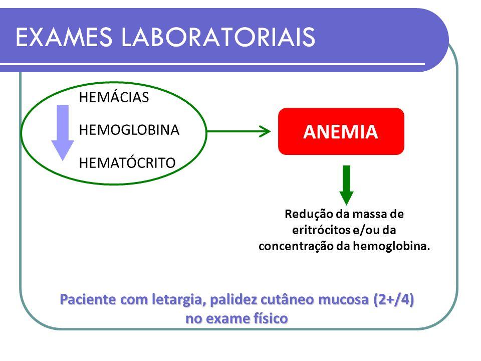Exame desidrogenase lactica