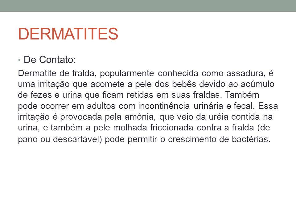DERMATITES De Contato: