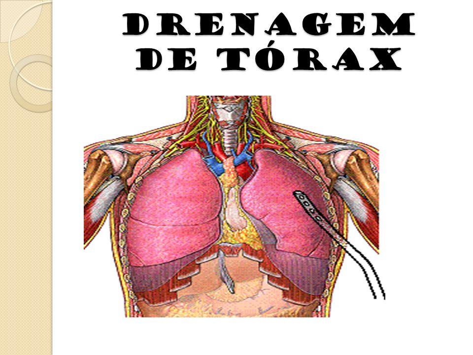 DRENAGEM DE TÓRAX