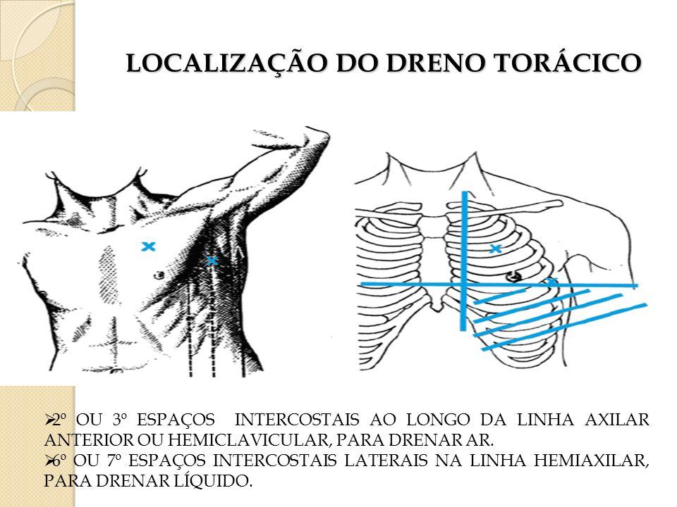 LOCALIZAÇÃO DO DRENO TORÁCICO