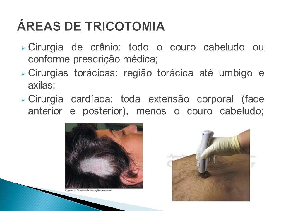 ÁREAS DE TRICOTOMIA Cirurgia de crânio: todo o couro cabeludo ou conforme prescrição médica;