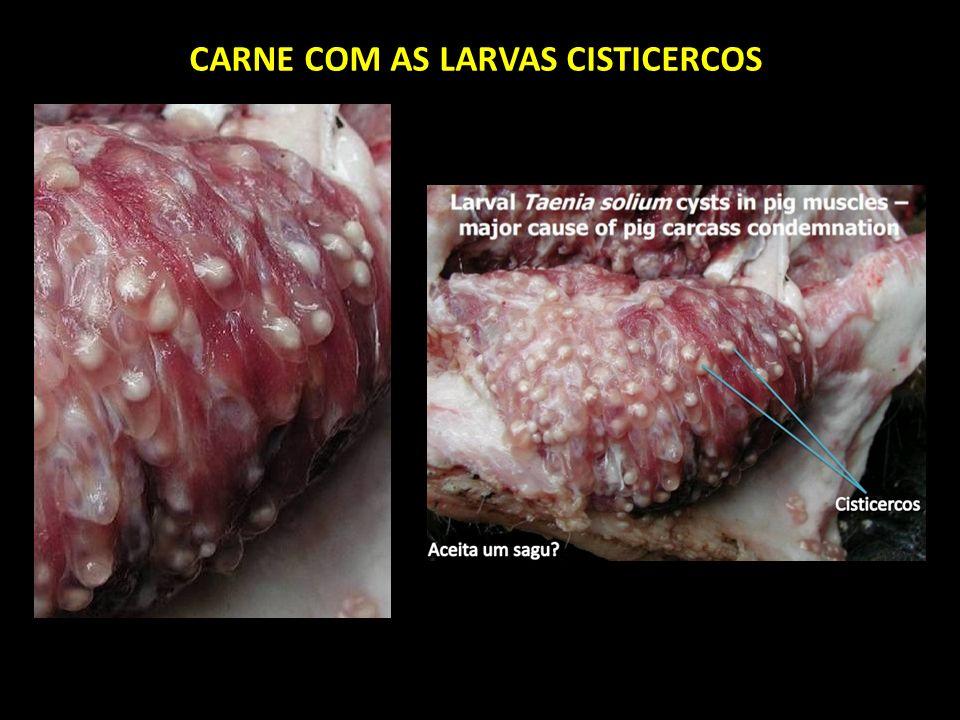 Resultado de imagem para carne com cisticercose
