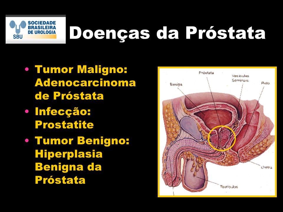 tumor na prostata benigno)
