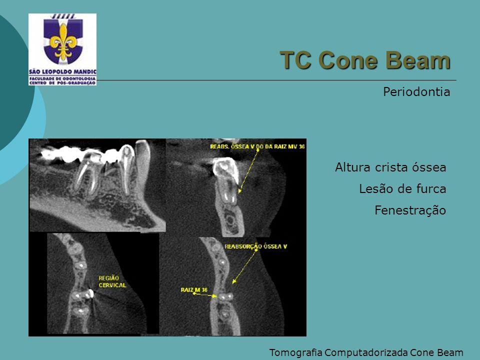 Tomografia Computadorizada Cone Beam Ppt Carregar