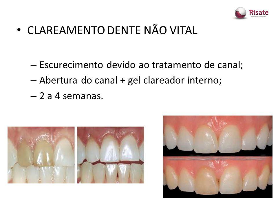 Clareamento Dental Ppt Carregar