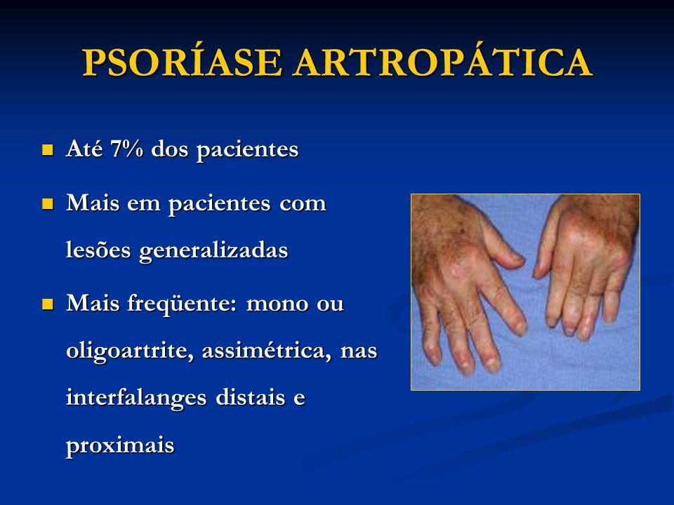 tratamentul cu matrice de artroză unguente de încălzire pentru articulații cu artroză