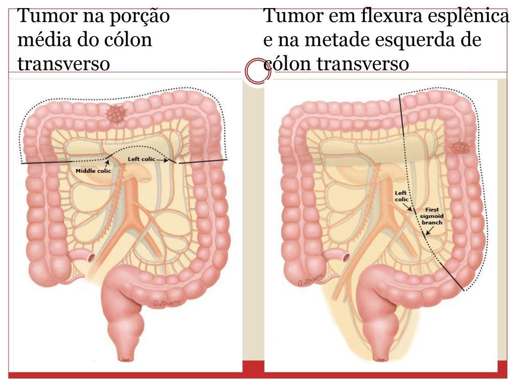 cancer de colon giardia