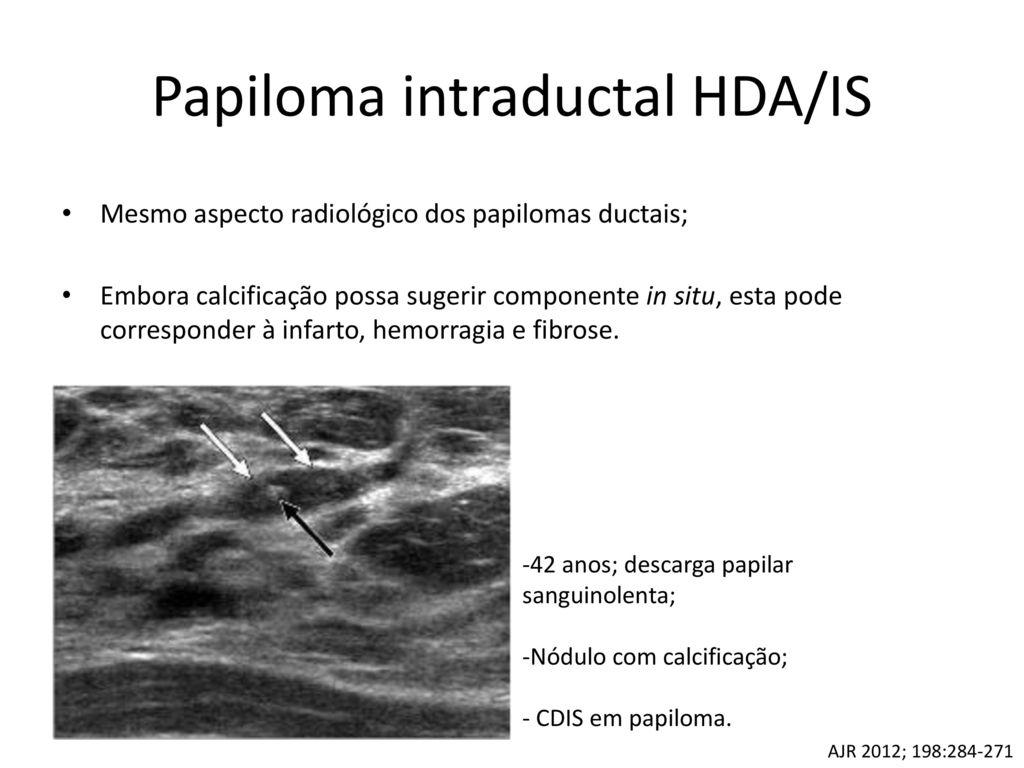 papiloma intraductal focal