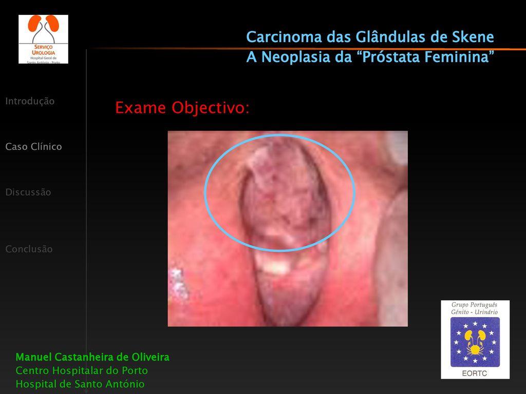cancer uretra feminina)