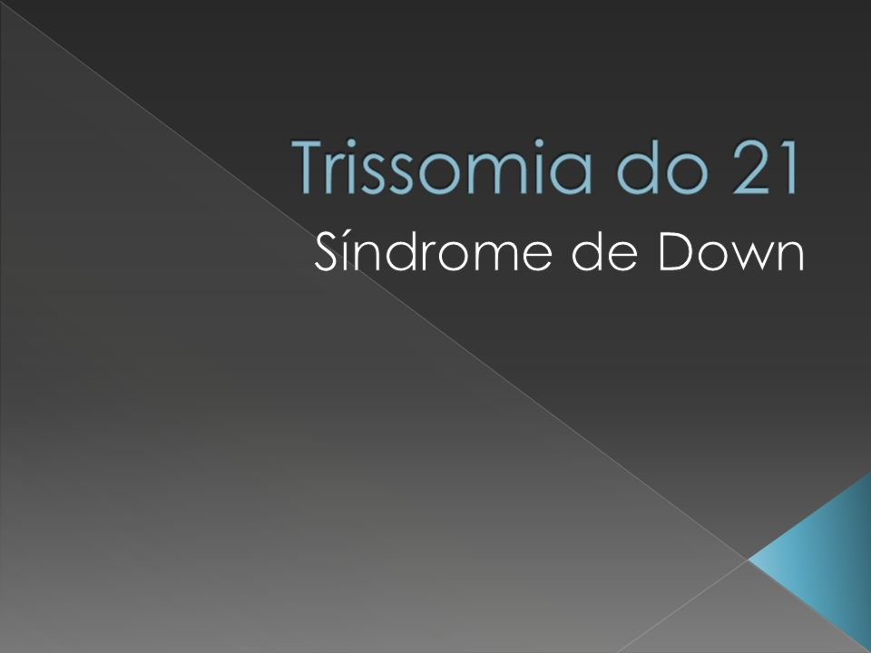 Trissomia do 21 Síndrome de Down