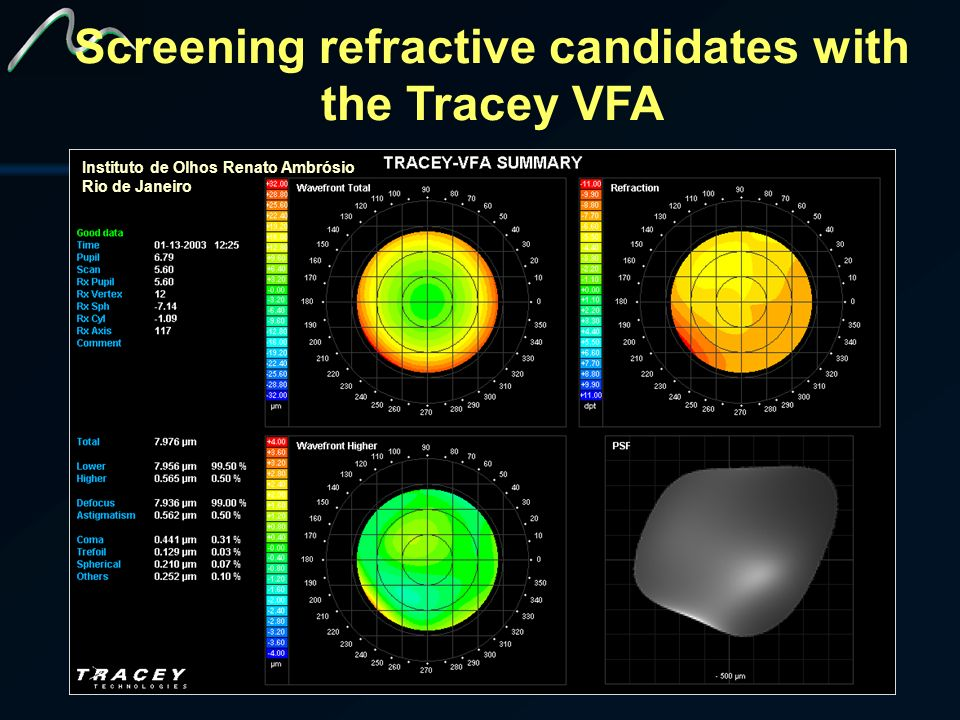 Screening refractive candidates with the Tracey VFA