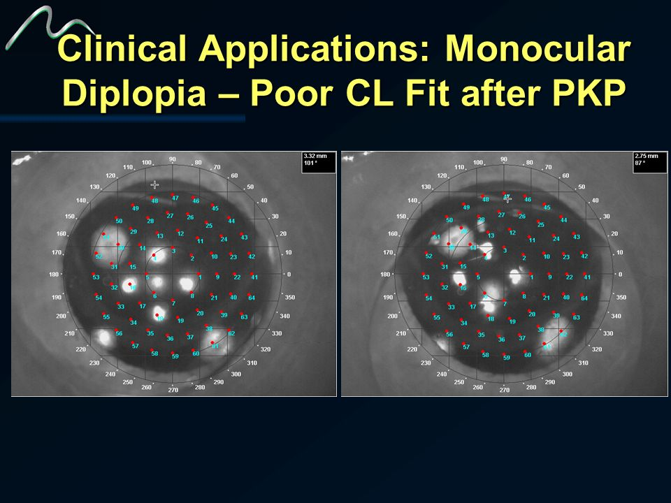 Clinical Applications: Monocular Diplopia – Poor CL Fit after PKP