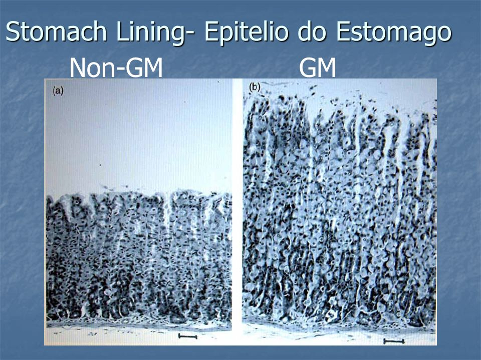 Stomach Lining- Epitelio do Estomago