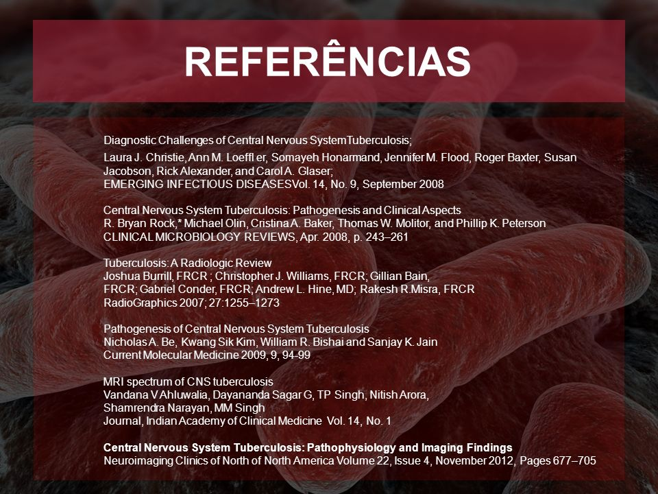REFERÊNCIAS Diagnostic Challenges of Central Nervous SystemTuberculosis;