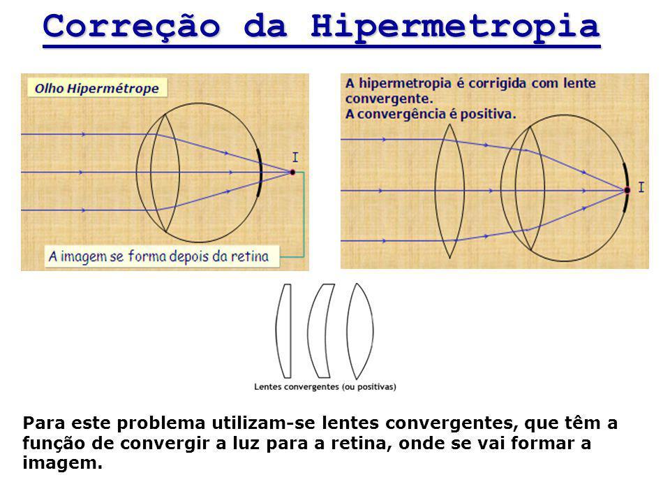 4c859fbb3e Defeitos da visão Prof. Rodrigo Lins. - ppt carregar