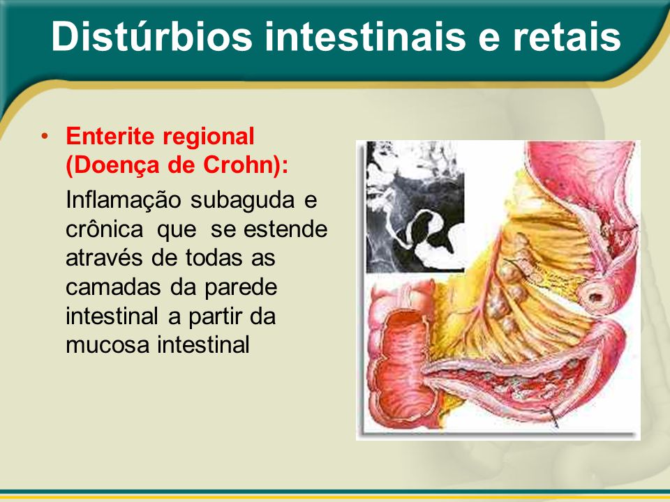 Distúrbios intestinais e retais
