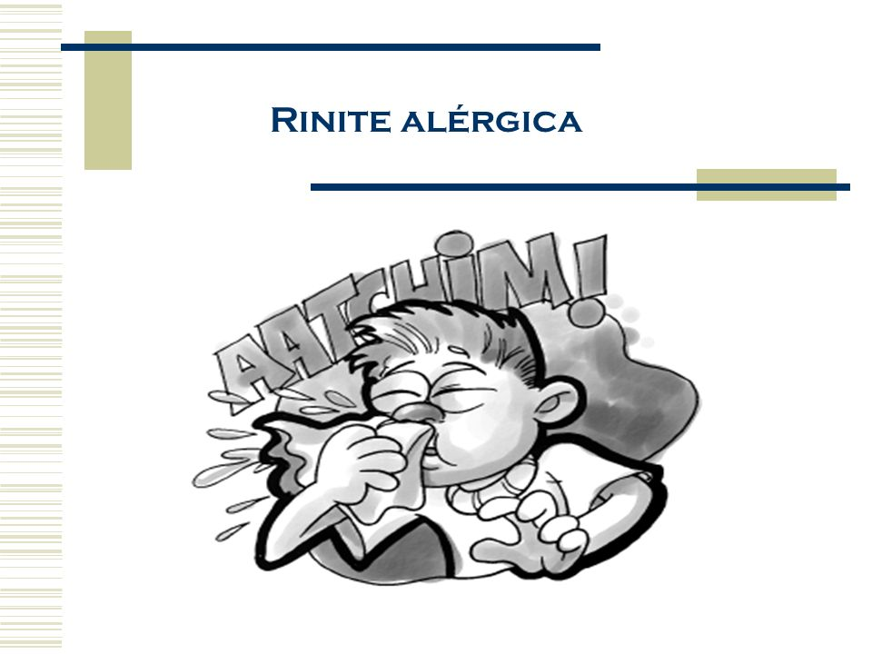 Rinite alérgica