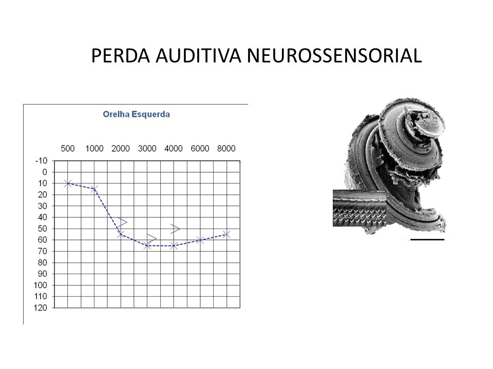 PERDA AUDITIVA NEUROSSENSORIAL