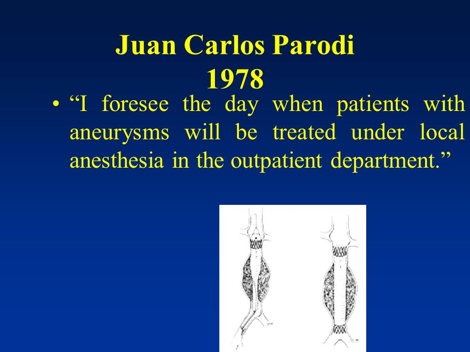 Juan Carlos Parodi 1978 I foresee the day when patients with aneurysms will be treated under local anesthesia in the outpatient department.