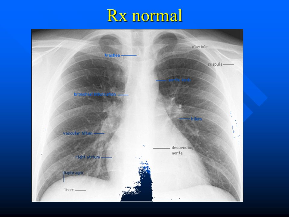 Rx normal