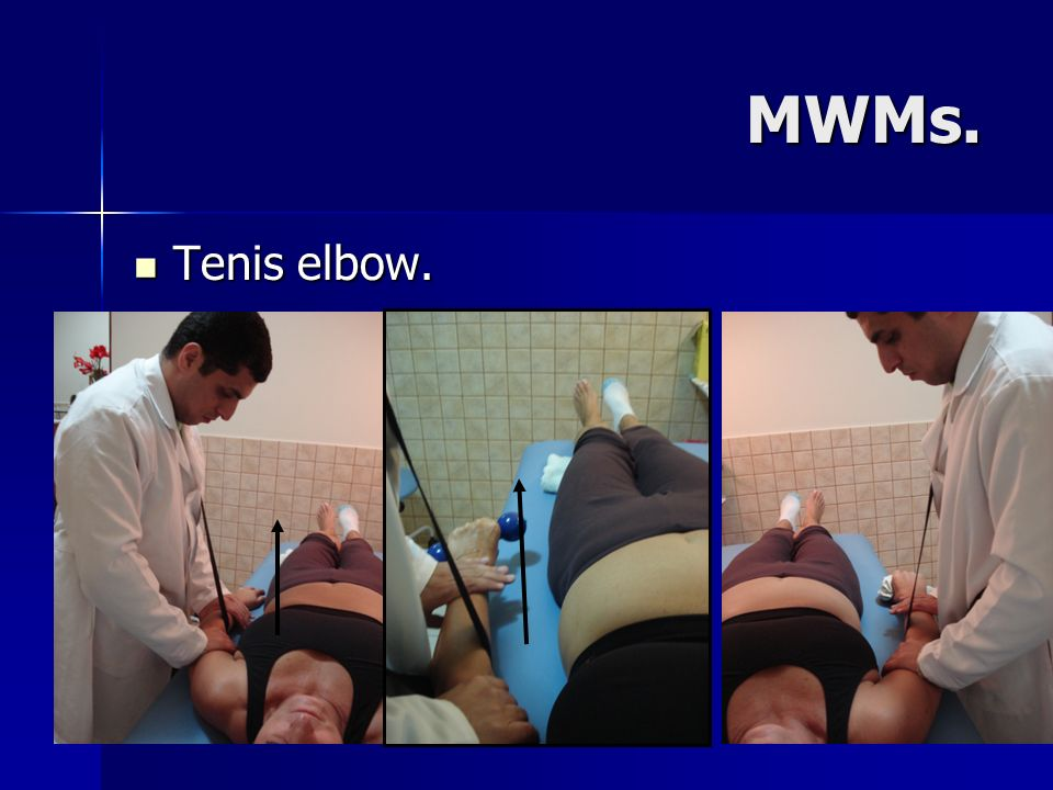MWMs. Tenis elbow.