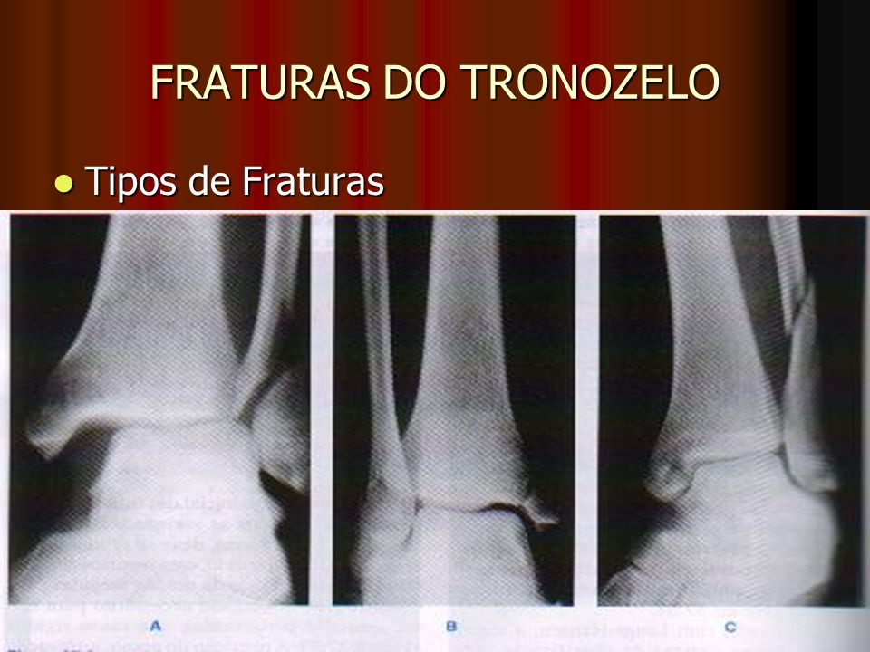 FRATURAS DO TRONOZELO Tipos de Fraturas
