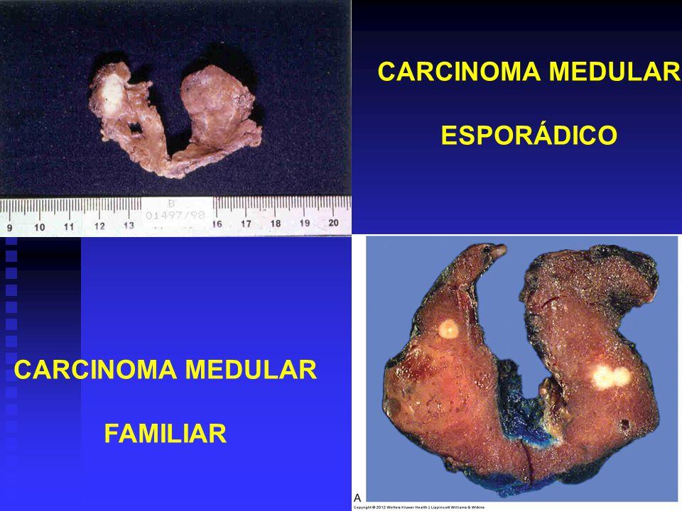 que es cancer folicular)