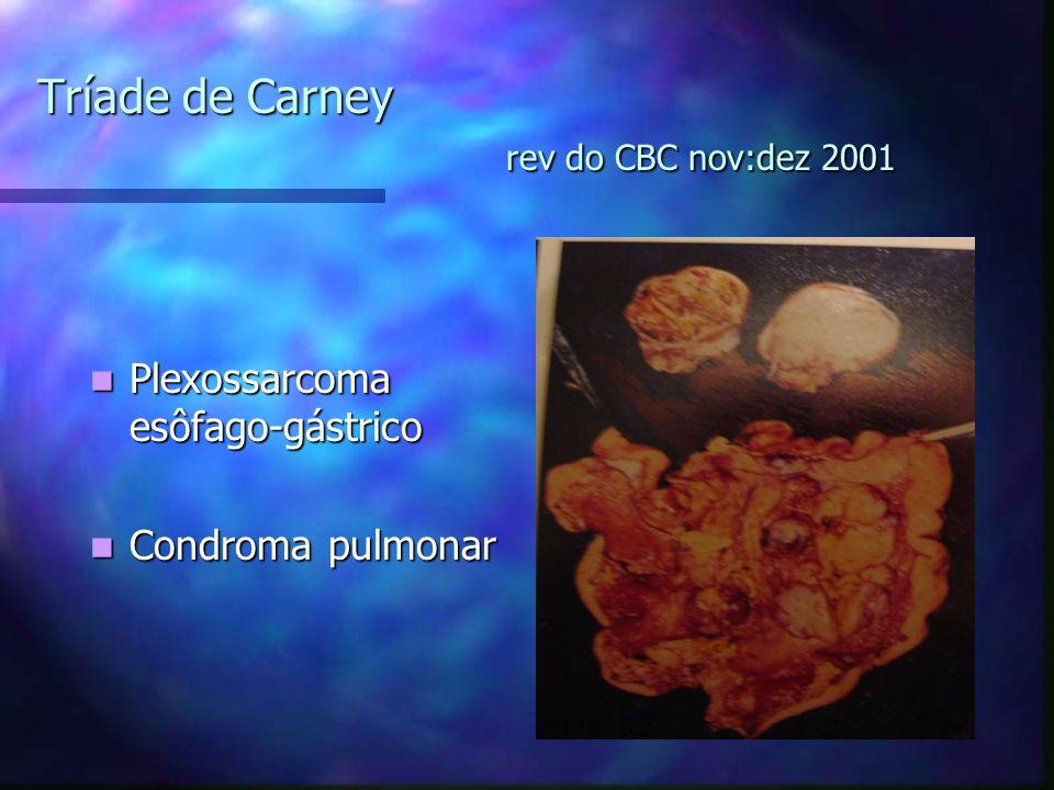 Tríade de Carney rev do CBC nov:dez 2001