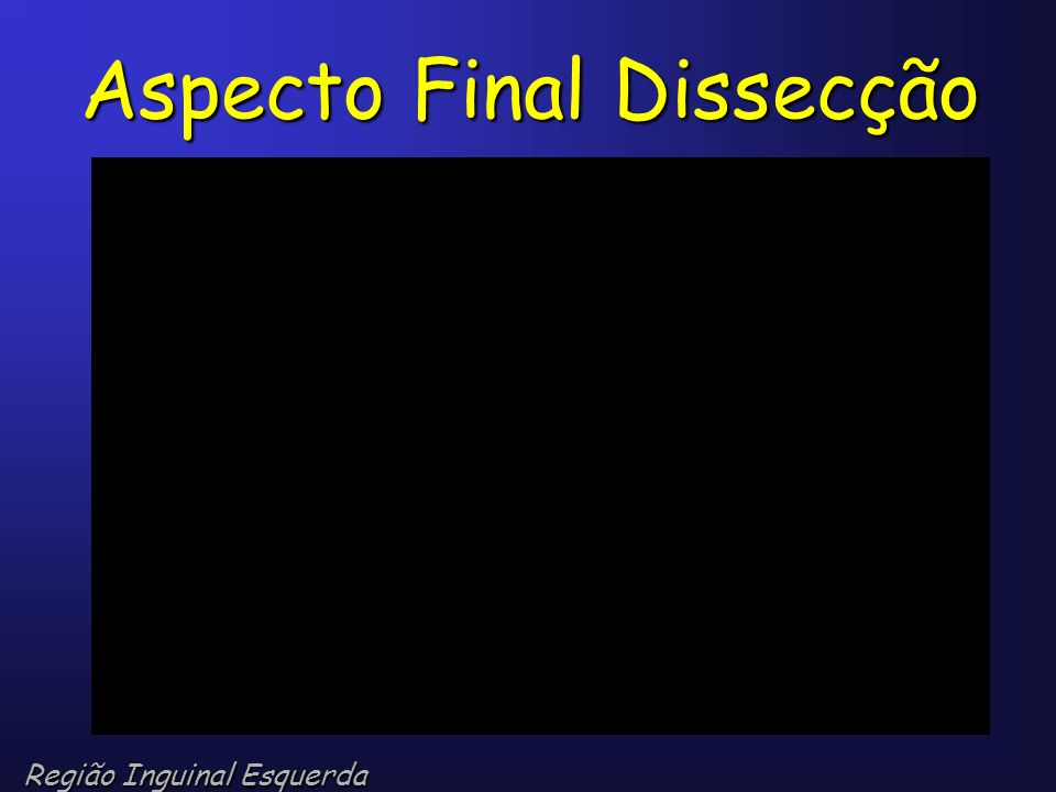 Aspecto Final Dissecção