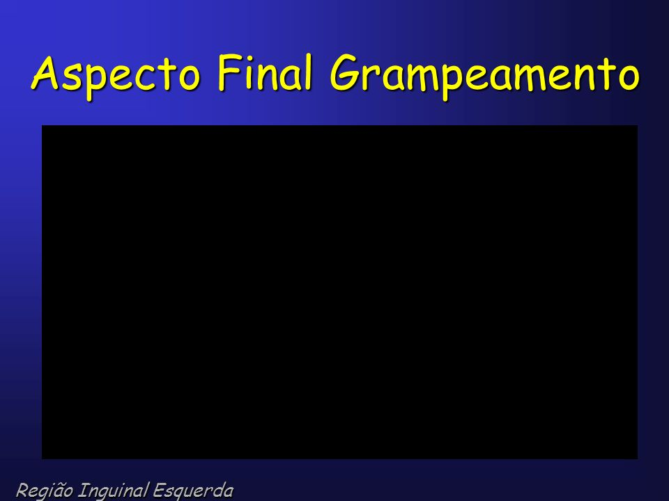 Aspecto Final Grampeamento