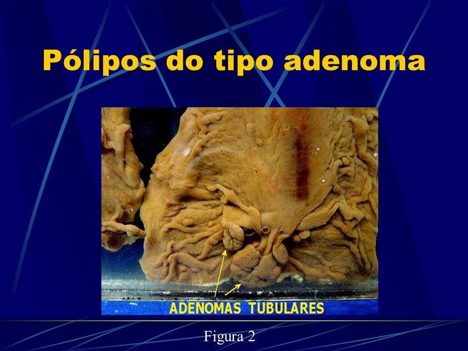 Pólipos do tipo adenoma