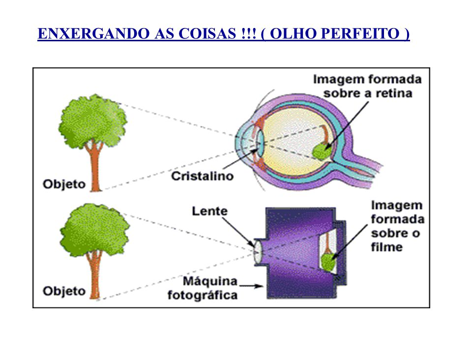 4ebbaab3f70ad Visão. 2 ENXERGANDO AS COISAS !!! ( OLHO PERFEITO )