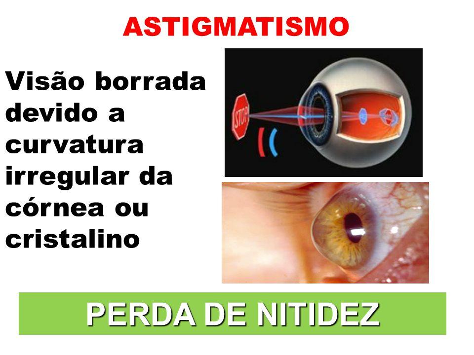 3b5a7c5c8f504 28 PERDA DE NITIDEZ ASTIGMATISMO