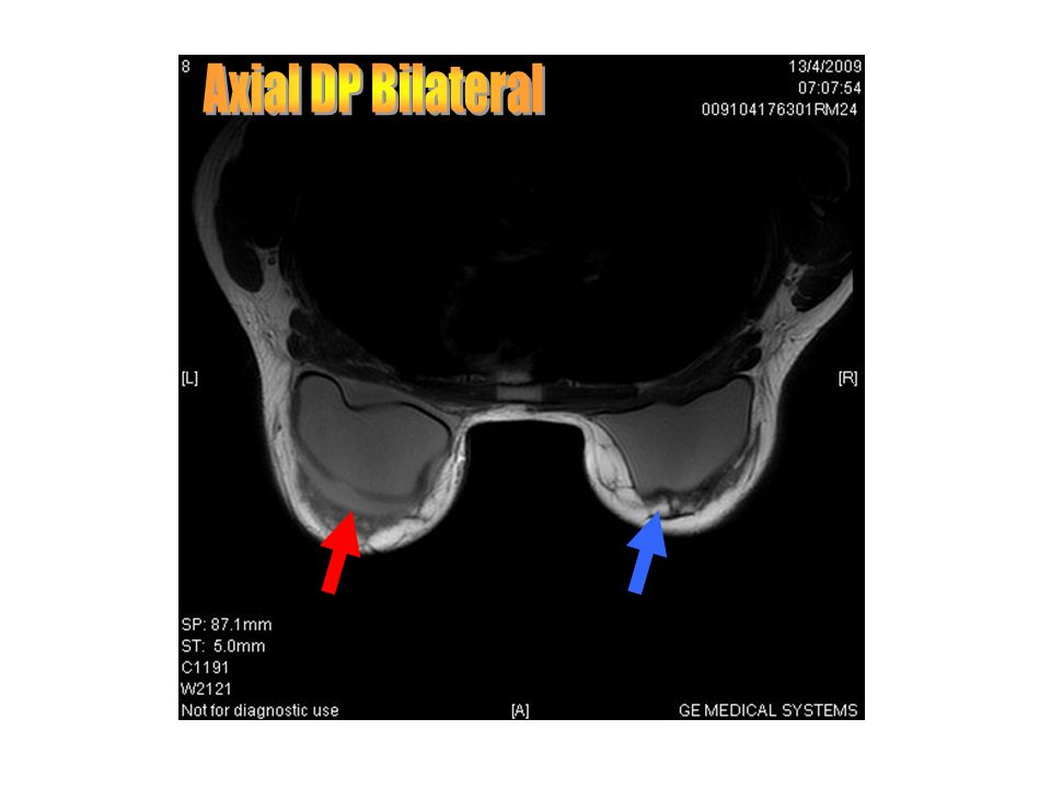 Axial DP Bilateral