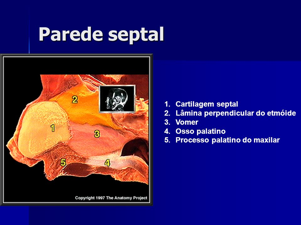 Parede septal Cartilagem septal Lâmina perpendicular do etmóide Vomer