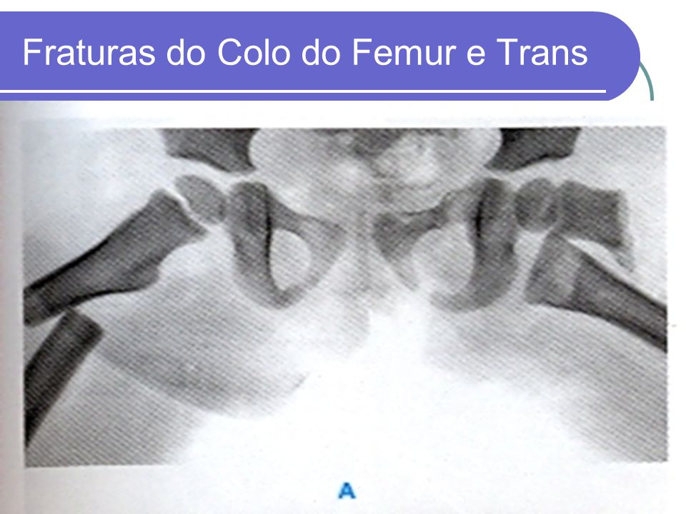 Fraturas do Colo do Femur e Trans